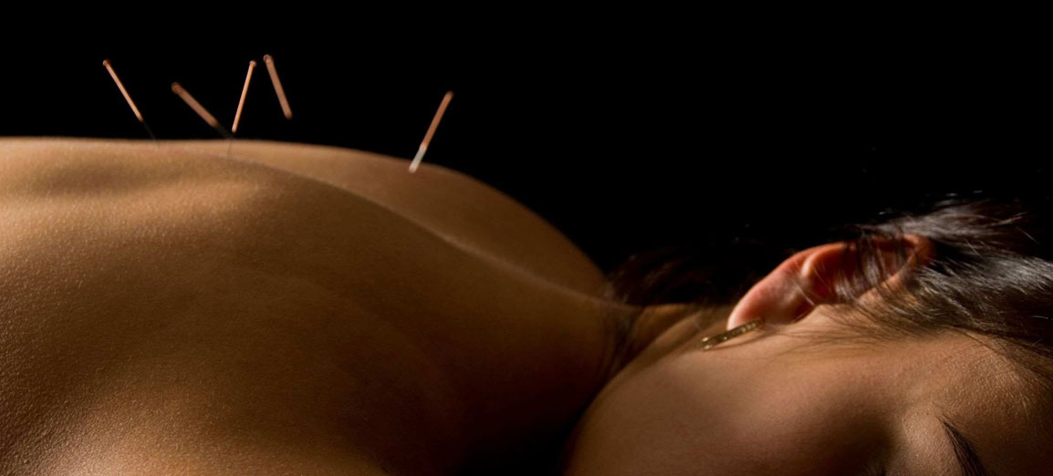 acupuncture04